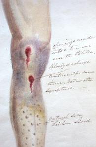 Figure 3 Henry Mahon Essay on Scurvy